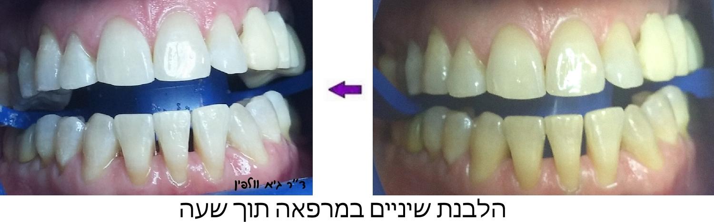הלבנת שיניים תוך שעה במרפאה ZOOM גיא וולפין אסתטיקה דנטלית