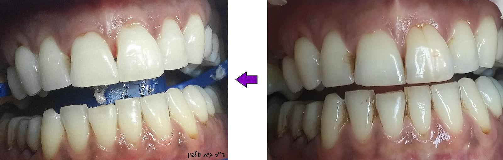 לפני ואחרי הלבנה במרפאה ZOOM וולפין
