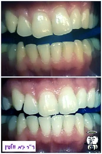 הלבנת שיניים בטוחה ויעילה, תוך שעה במרפאה - גיא וולפין